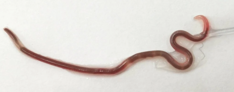Wriggling Roundworm Found in Woman's Tonsil After She Ate Sashimi